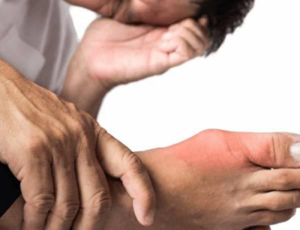 Krystaly indukované artritidy - Dna